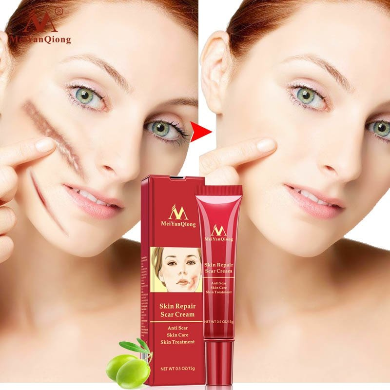 Acne Scar Removal Cream Skin Repair Face Cream Acne Spots Gearbeauty