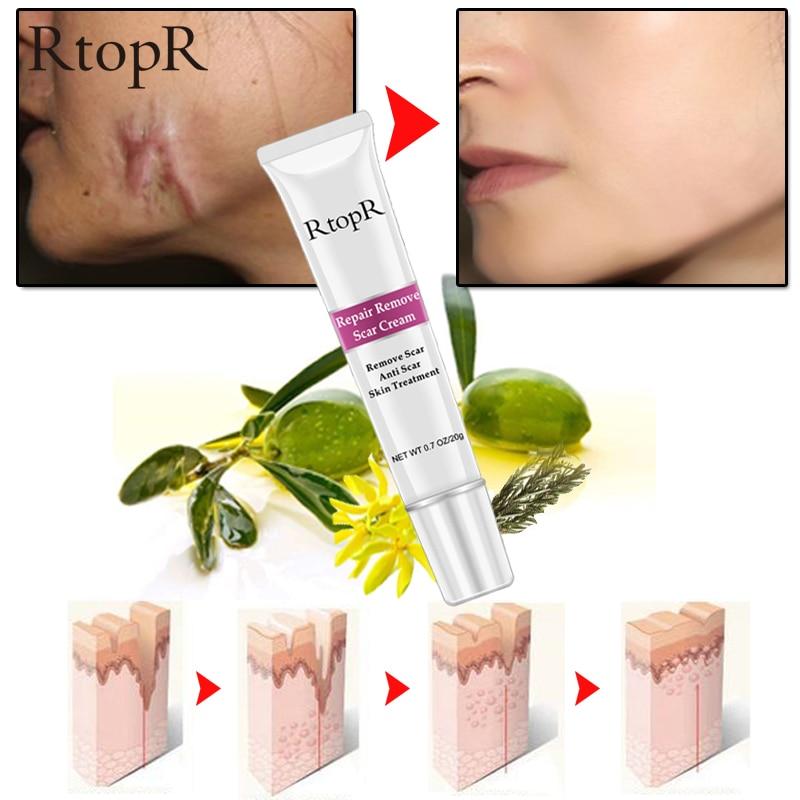 Rtopr Acne Scar Stretch Marks Remover Cream Skin Gearbeauty